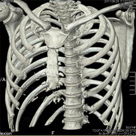 肋骨3D画像